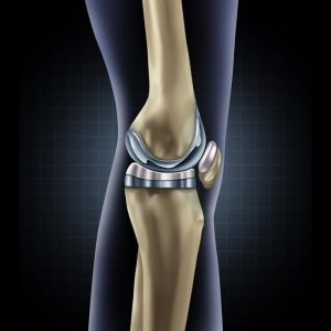dupuy-Attune-knee-problems-omaha-attorney